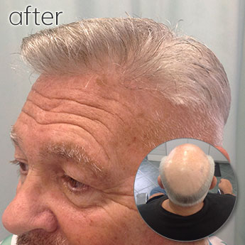Before and After Image of Elderly Man