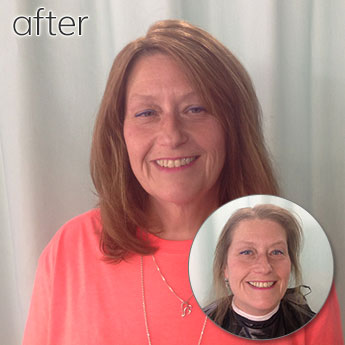 Before and After Image of Woman Hair Replacement
